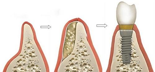công-nghệ-làm-implant-6
