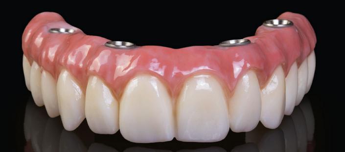 công nghệ cấy ghép răng implant 3