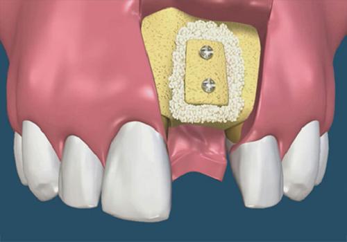 giá cấy ghép răng implant 2