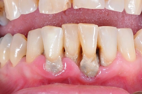 điều-trị-tiêu-xương-răng-3