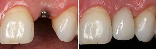công nghệ cắm ghép răng implant 7