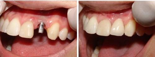 công nghệ cắm ghép răng implant 9