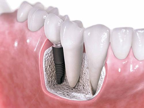 công nghệ cấy ghép răng implant