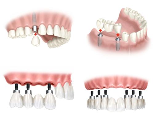 công nghệ cấy ghép răng implant 2