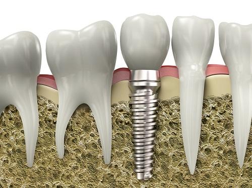 kết quả cắm răng implant duy trì được bao lâu