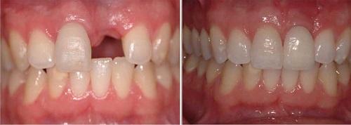 cấy ghép răng implant có bền không 6