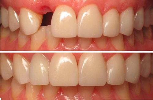 kết quả cắm răng implant duy trì được bao lâu 3