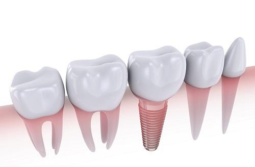 ưu diểm của cấy ghép răng implant