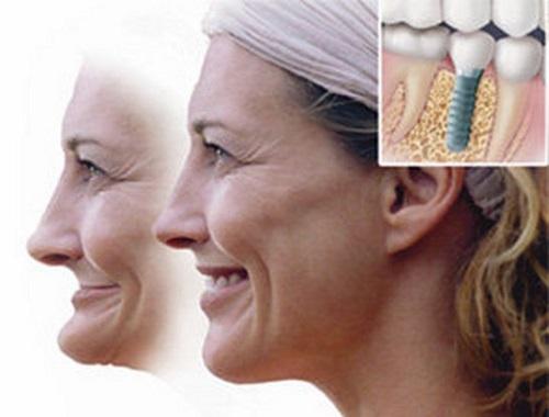 ưu điểm cảu cấy ghép răng implant 3