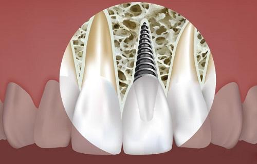 ưu điểm của cấy ghép răng implant 4