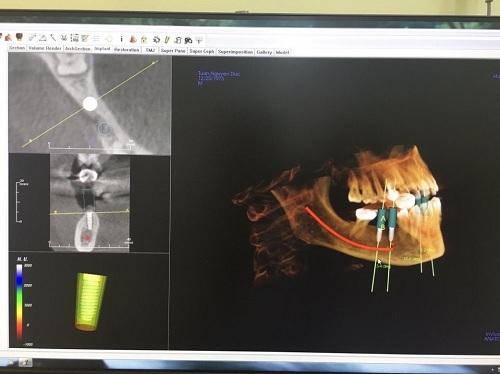 công nghệ cấy ghép răng implant 6