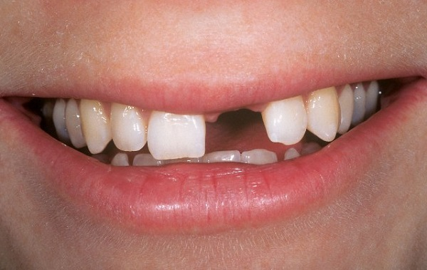 trồng răng cửa cố định