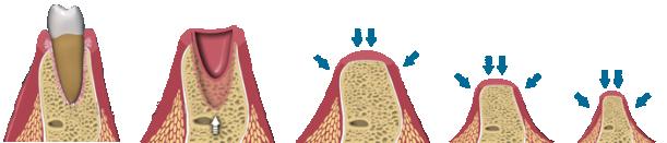 điều-trị-tiêu-xương-răng-2