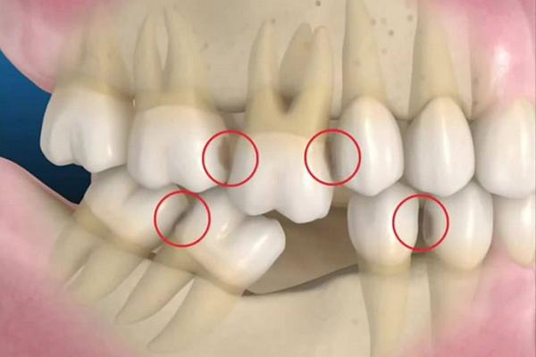 mất răng hàm số 6