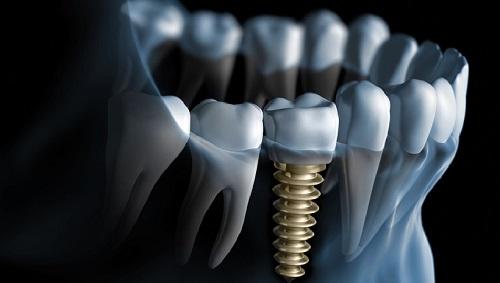 phương pháp trồng răng implant 2