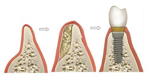 phương pháp trồng răng implant 4
