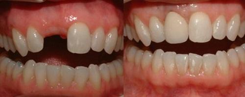 răng bị gãy còn chân răng