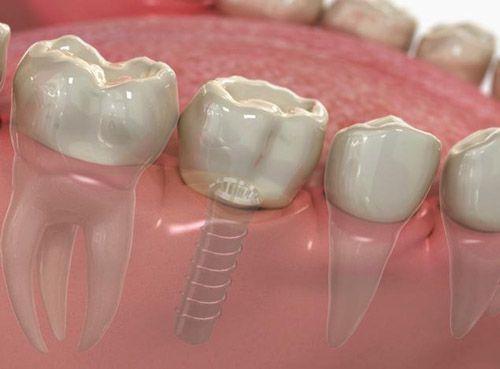 răng bị gãy còn chân răng 5