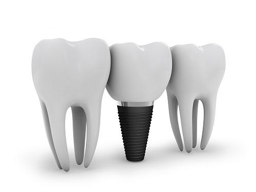 trồng lại răng bị mất