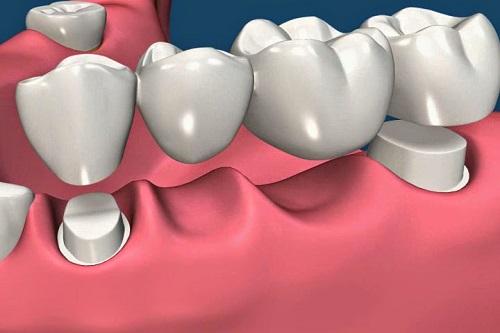 trồng lại răng bị mất 4