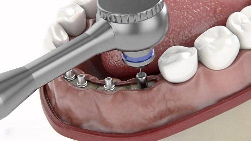 trồng răng bằng phương pháp implant có đau không 2