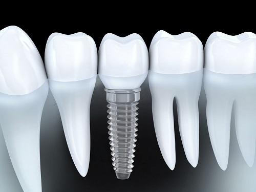 trồng răng công nghệ implant