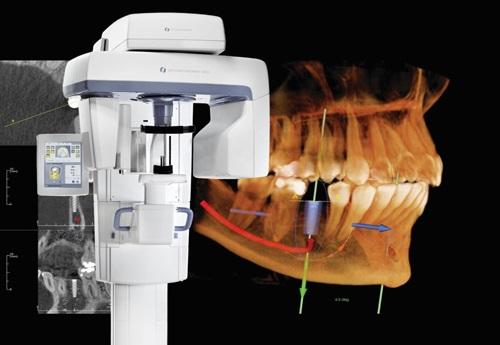 trồng răng công nghệ implant 2
