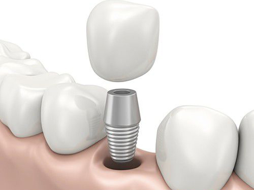 trồng răng hàm implant 3