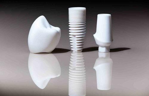 trồng răng implant có bền không