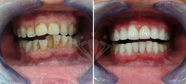 cách chữa bệnh nghiến răng 8