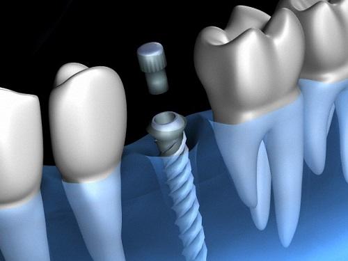 cắm implant sau nhổ răng có được không