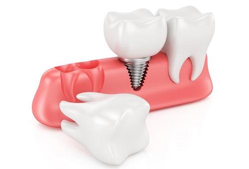 cắm răng implant vào thời điểm nào là tốt nhất