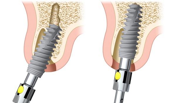 răng implant tồn tại được bao lâu 2
