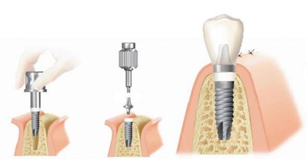 cấy ghép implant 5