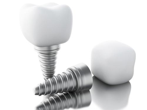 có nên trồng răng giả cố định vĩnh viễn không