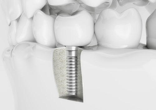 có nên trồng răng giả cố định vĩnh viễn không 2