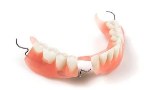 có nên trồng răng giả cố định vĩnh viễn 3