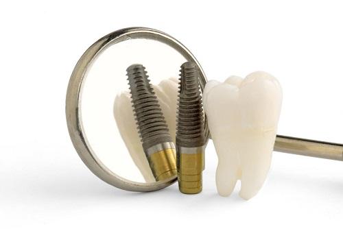 giá trồng răng sứ vĩnh viễn
