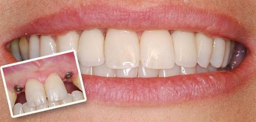 giá trồng răng sứ vĩnh viễn 2