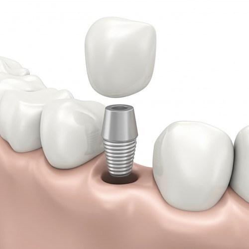 răng implant tồn tại được bao lâu 4