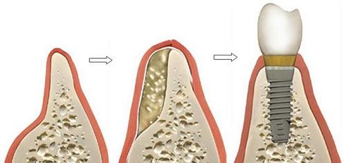 cấy ghép răng implant 5
