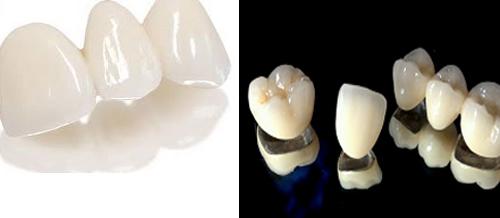 giá trồng răng implant 3