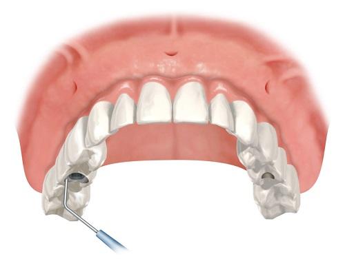 phục hình răng implant 2