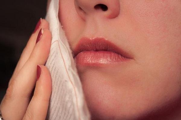 cách trị sâu răng