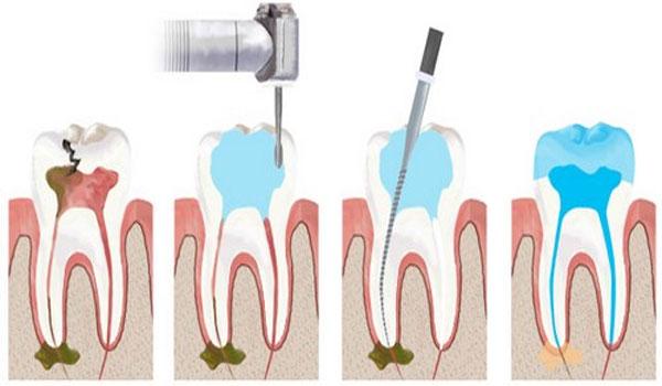 cách trị sâu răng 5