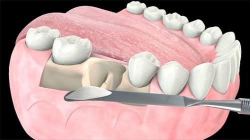 ghép xương răng bao nhiêu tiền
