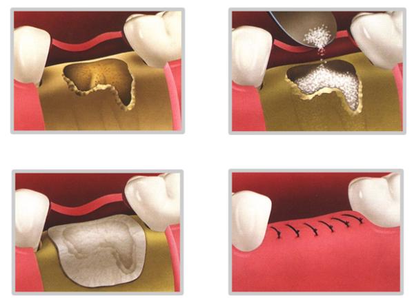 ghép xương răng bao nhiêu tiền 4
