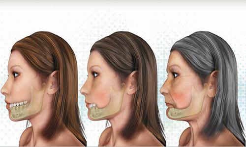 nhổ răng bao lâu thì trồng răng implant được 2