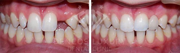 cấy ghép implant răng cửa 2