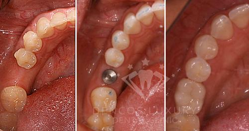 cắm implant hàm trên 4